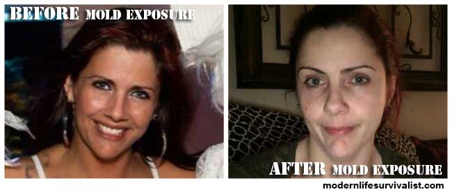 Shannon---Mold-victim-before-and-after-photosmls (1)